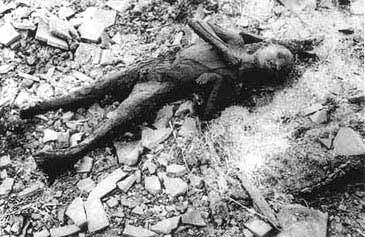 Fotos das vitimas da bomba atomica 80